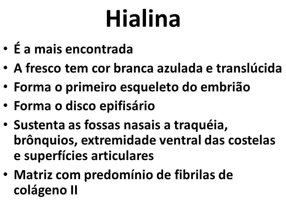 Hialina É a mais encontrada A fresco tem cor branca azulada e translúcida Forma o primeiro esqueleto do embrião Forma o disco epifisário Sustenta as fossas nasais a traquéia, brônquios, extremidade ventral das costelas e superfícies articulares Matriz com predomínio de fibrilas de colágeno II