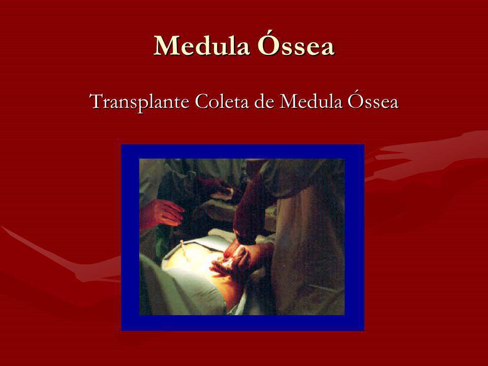 Medula Óssea Transplante Coleta de Medula Óssea