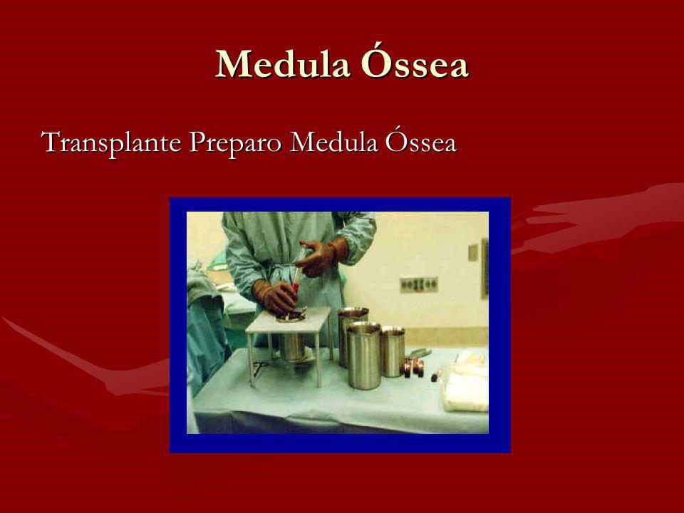 Medula Óssea Transplante Preparo Medula Óssea