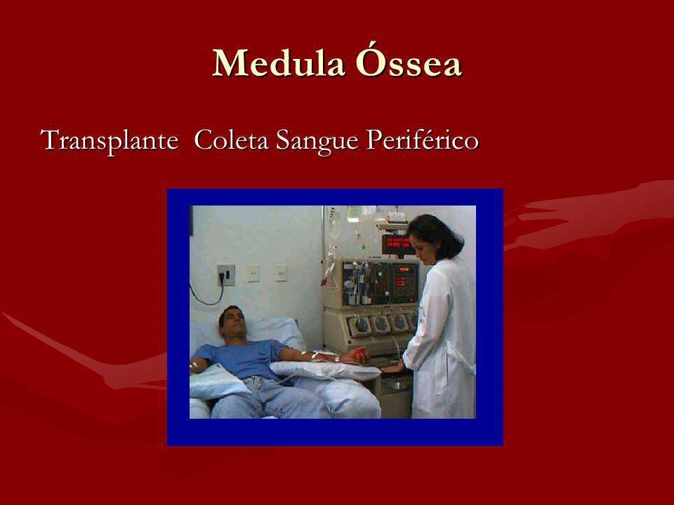 Medula Óssea Transplante Coleta Sangue Periférico