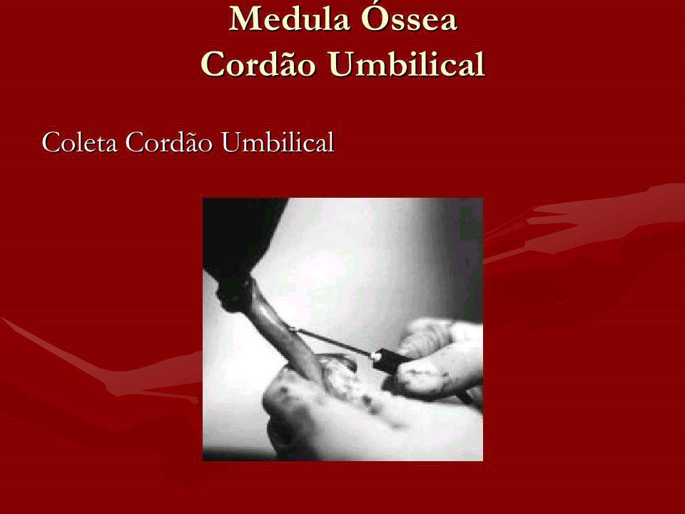 Medula Óssea Cordão Umbilical Coleta Cordão Umbilical