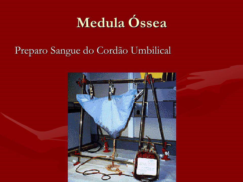Medula Óssea Preparo Sangue do Cordão Umbilical