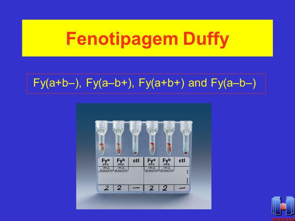 Fenotipagem Duffy Fy(a+b–), Fy(a–b+), Fy(a+b+) and Fy(a–b–)