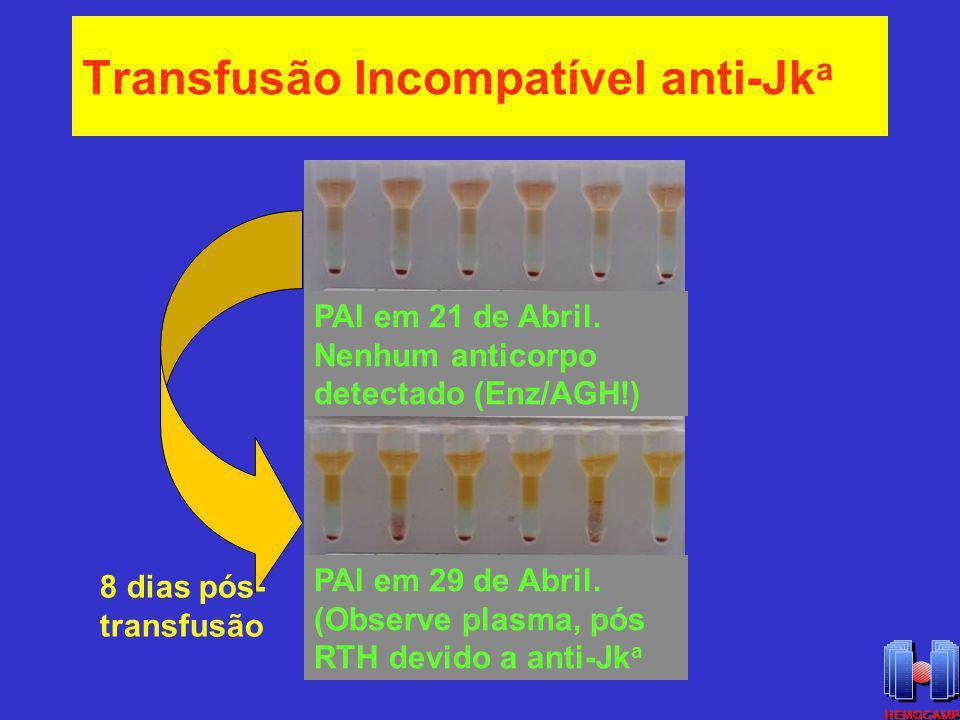 Transfusão Incompatível anti-Jk a PAI em 21 de Abril. Nenhum anticorpo detectado (Enz/AGH!) PAI em 29 de Abril. (Observe plasma, pós RTH devido a anti