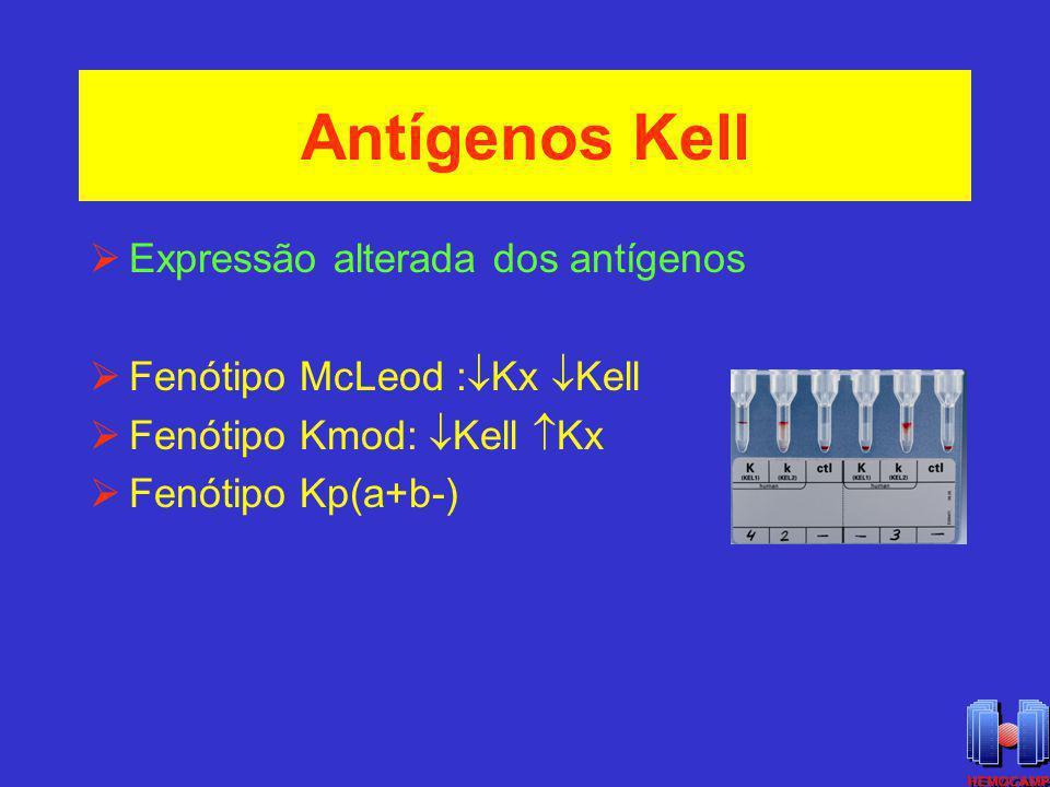Fenótipo K null ou K 0 Gene Ko alelo silencioso no locus Kell Gene Ko alelo silencioso no locus Kell Fenótipo Kell null K o K o Kx em abundância Fenótipo Kell null K o K o Kx em abundância Hemácias K o tem sobrevida normal Hemácias K o tem sobrevida normal Indivíduos K o alomunizados anti-Ku : RTH e DHRN Indivíduos K o alomunizados anti-Ku : RTH e DHRN Fenótipo raro: porém com maior frequência Finlândia e Japão Fenótipo raro: porém com maior frequência Finlândia e Japão