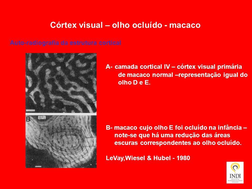 Córtex visual – olho ocluído - macaco Auto-radiografia da estrutura cortical A- camada cortical IV – córtex visual primária de macaco normal –represen
