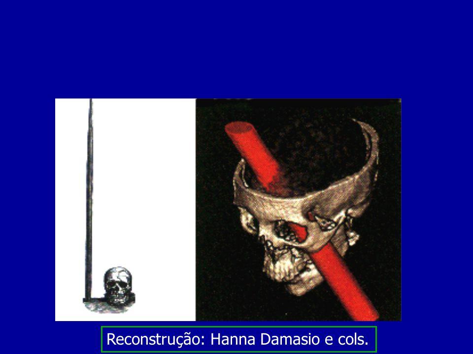 Reconstrução: Hanna Damasio e cols.
