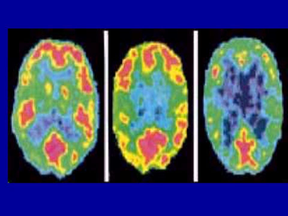 Imagens PET do cérebro de uma pessoa normal (esquerda), um assassino com história de deprivação na infância (centro) e um assassino sem história de deprivação (direita).