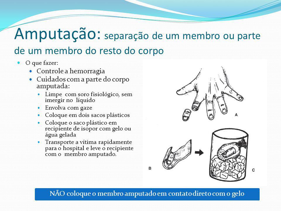 Amputação: separação de um membro ou parte de um membro do resto do corpo O que fazer: Controle a hemorragia Cuidados com a parte do corpo amputada: L