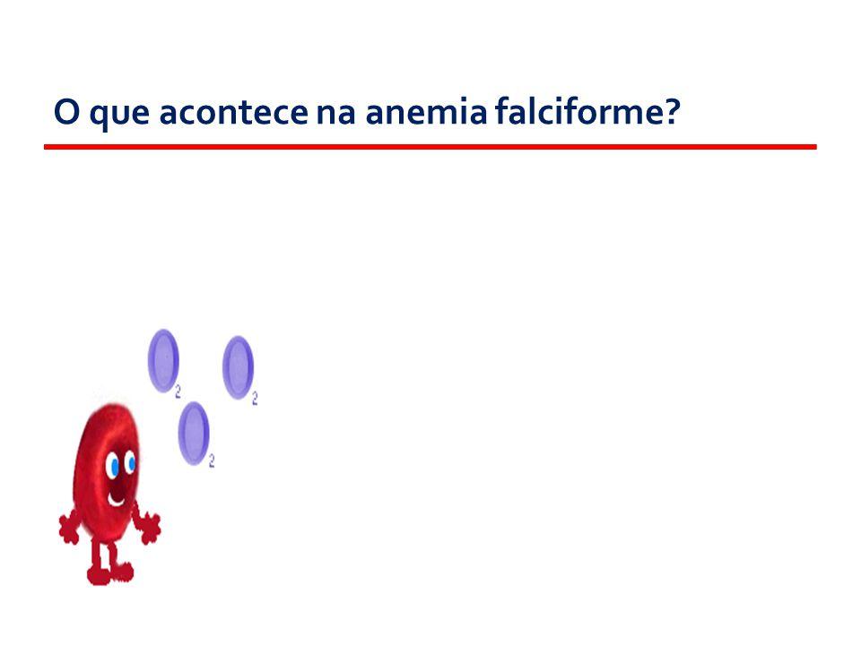 O que acontece na anemia falciforme?