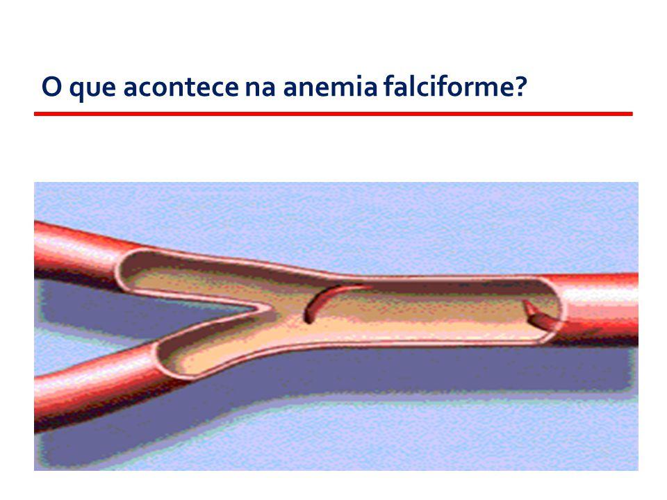 O2O2O2O2 Destruição das células Entupimento dos vasos Célula com Hemoglobina S Afoiçamento O que acontece na anemia falciforme?