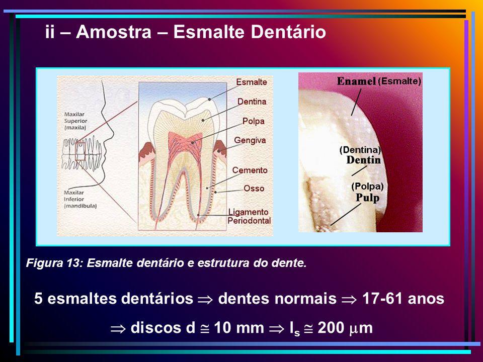 5 esmaltes dentários dentes normais 17-61 anos discos d 10 mm l s 200 m Figura 13: Esmalte dentário e estrutura do dente. ii – Amostra – Esmalte Dentá