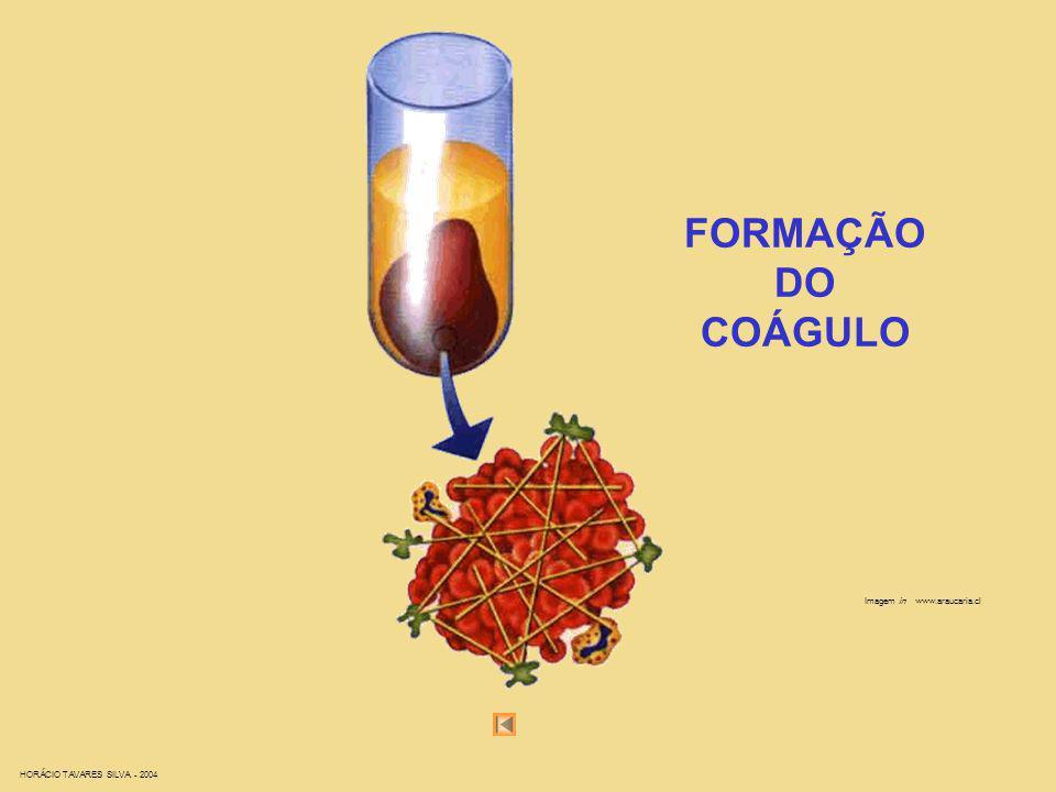 HORÁCIO TAVARES SILVA - 2004 Imagem in www.araucaria.cl FORMAÇÃO DO COÁGULO
