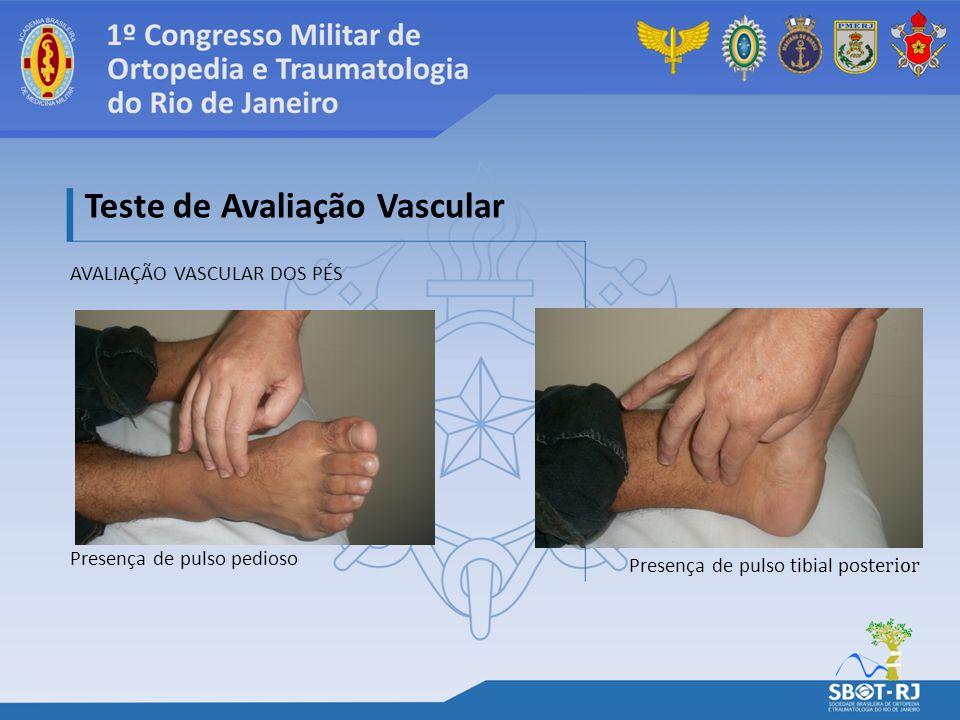 AVALIAÇÃO VASCULAR DOS PÉS Teste de Avaliação Vascular Presença de pulso pedioso Presença de pulso tibial pos terior