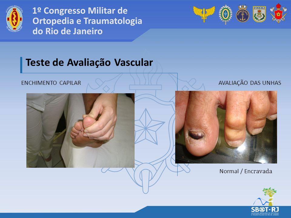 ENCHIMENTO CAPILAR Teste de Avaliação Vascular AVALIAÇÃO DAS UNHAS Normal / Enc ravada