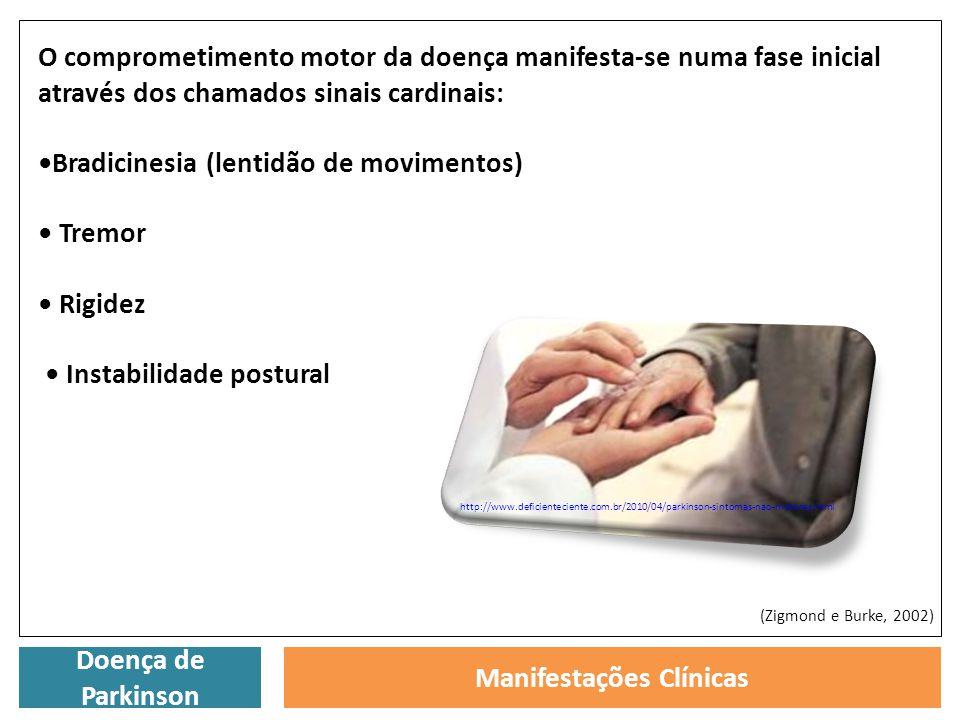 Doença de Parkinson Manifestações Clínicas O comprometimento motor da doença manifesta-se numa fase inicial através dos chamados sinais cardinais: Bra