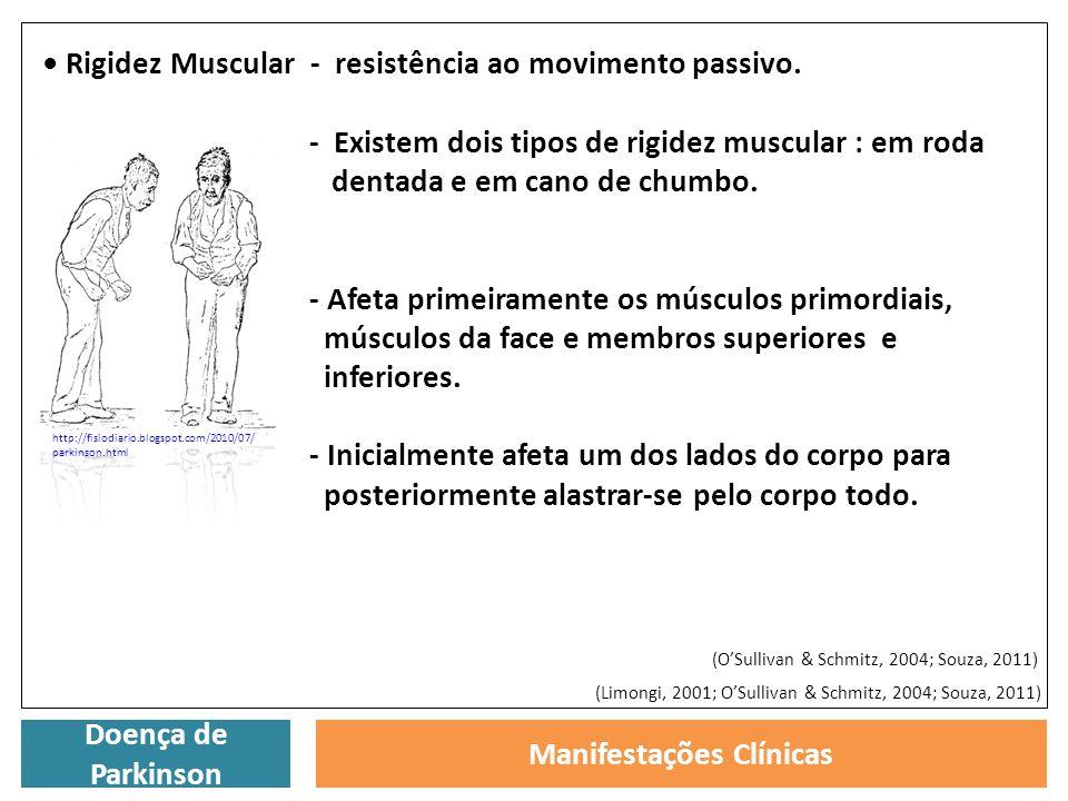Doença de Parkinson Manifestações Clínicas Rigidez Muscular - resistência ao movimento passivo. - Existem dois tipos de rigidez muscular : em roda den