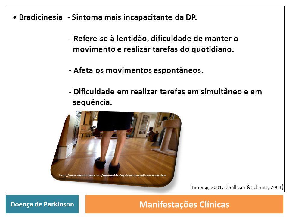 Doença de Parkinson Manifestações Clínicas Bradicinesia - Sintoma mais incapacitante da DP. - Refere-se à lentidão, dificuldade de manter o movimento