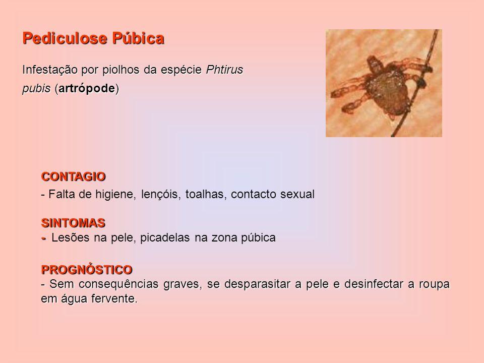 Pediculose Púbica Infestação por piolhos da espécie Phtirus pubis (artrópode) CONTAGIO - Falta de higiene, lençóis, toalhas, contacto sexualSINTOMAS - - Lesões na pele, picadelas na zona púbicaPROGNÓSTICO - Sem consequências graves, se desparasitar a pele e desinfectar a roupa em água fervente.