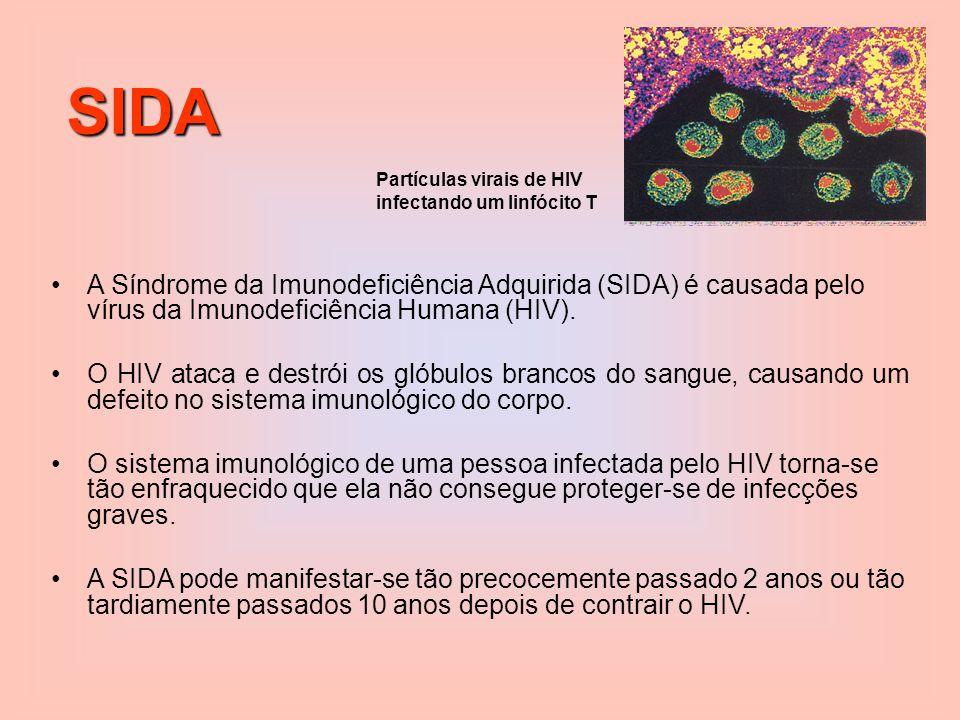 SIDA A Síndrome da Imunodeficiência Adquirida (SIDA) é causada pelo vírus da Imunodeficiência Humana (HIV).