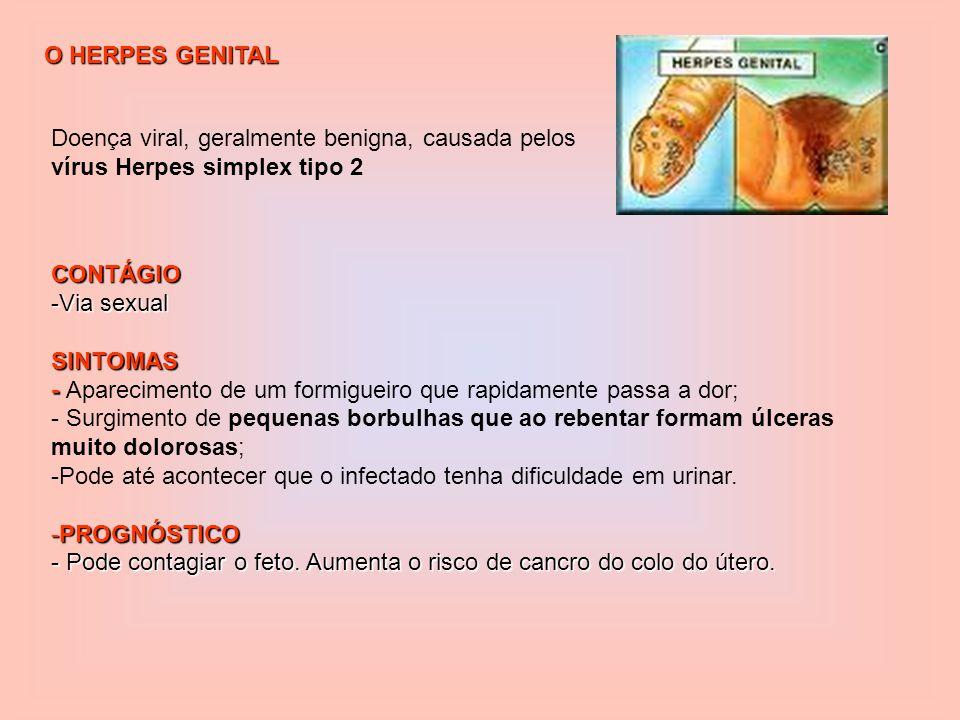 GONORREIA Causada por uma bactéria (Neisseria gonorroheae); CONTAGIO - Contacto sexual vaginal, anal ou oral SINTOMAS - - Inflamação do colo do útero, transtornos menstruais, uretrite no homem, secreção amarelada -PROGNÓSTICO - -esterilidade; - inflamação do pélvis, esterilidade e possível cegueira do recém-nascido