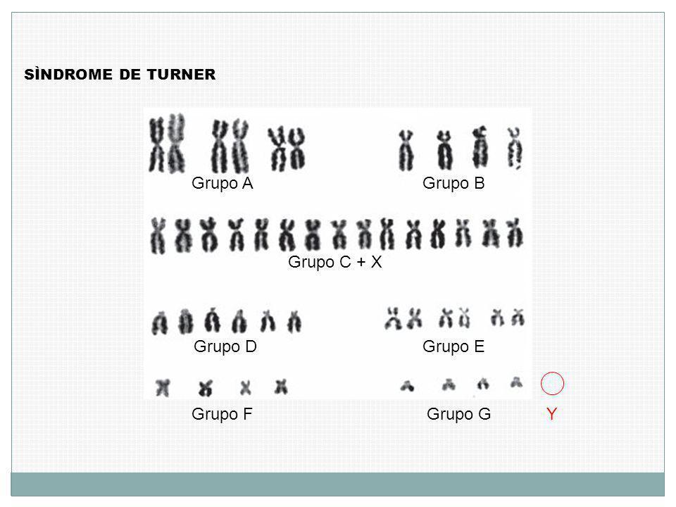 SÌNDROME DE TURNER Grupo AGrupo B Grupo C + X Grupo D Grupo E Grupo F Grupo GY
