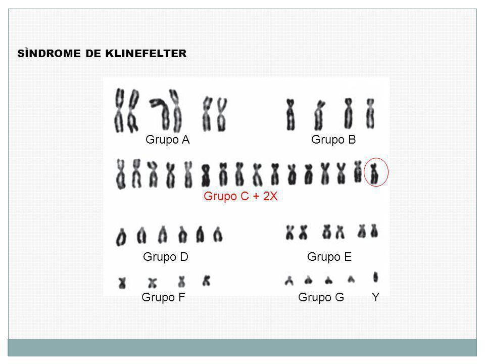 SÌNDROME DE KLINEFELTER Grupo AGrupo B Grupo C + 2X Grupo D Grupo E Grupo FGrupo GY