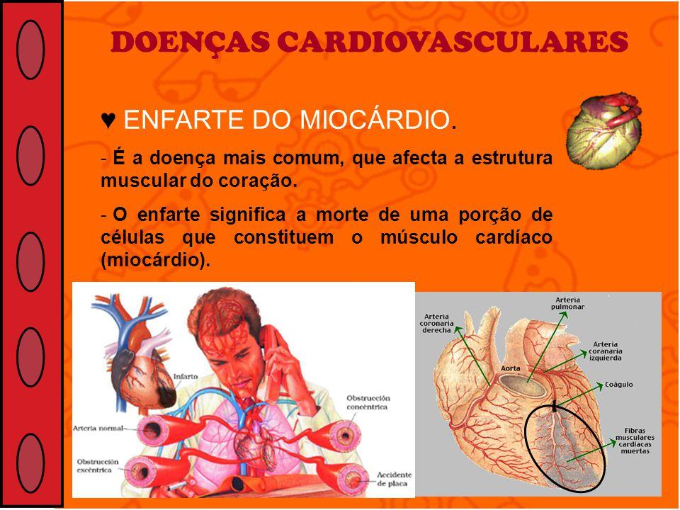 DOENÇAS CARDIOVASCULARES ENFARTE DO MIOCÁRDIO. - É a doença mais comum, que afecta a estrutura muscular do coração. - O enfarte significa a morte de u