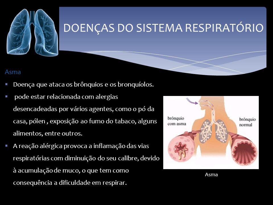 DOENÇAS DO SISTEMA RESPIRATÓRIO Pneumonia A mais comum é originada por uma bactéria que provoca a acumulação de muco, de glóbulos brancos e de pus nos alvéolos pulmonares.