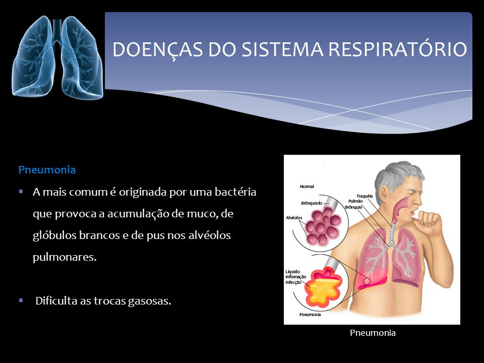 DOENÇAS DO SISTEMA RESPIRATÓRIO Pneumonia A mais comum é originada por uma bactéria que provoca a acumulação de muco, de glóbulos brancos e de pus nos