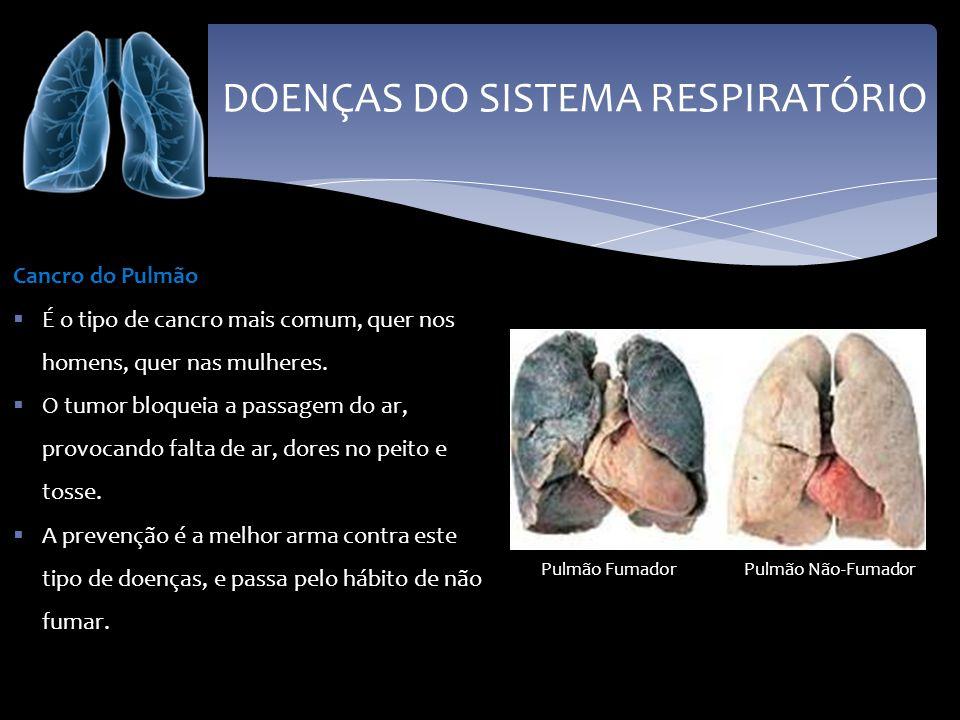 DOENÇAS DO SISTEMA RESPIRATÓRIO Cancro do Pulmão É o tipo de cancro mais comum, quer nos homens, quer nas mulheres. O tumor bloqueia a passagem do ar,