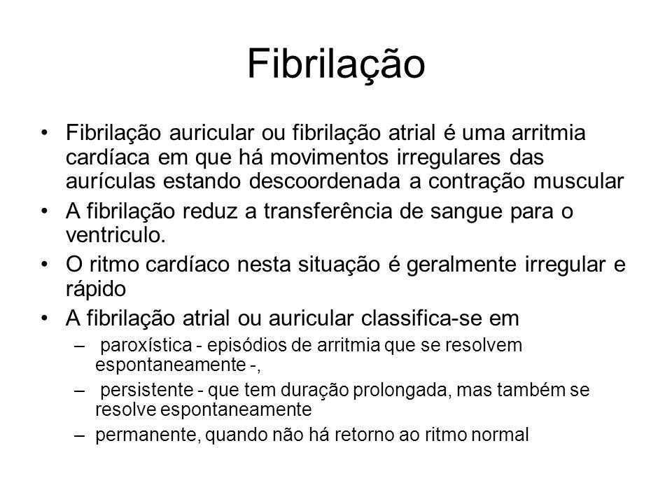 Fibrilação Fibrilação auricular ou fibrilação atrial é uma arritmia cardíaca em que há movimentos irregulares das aurículas estando descoordenada a co