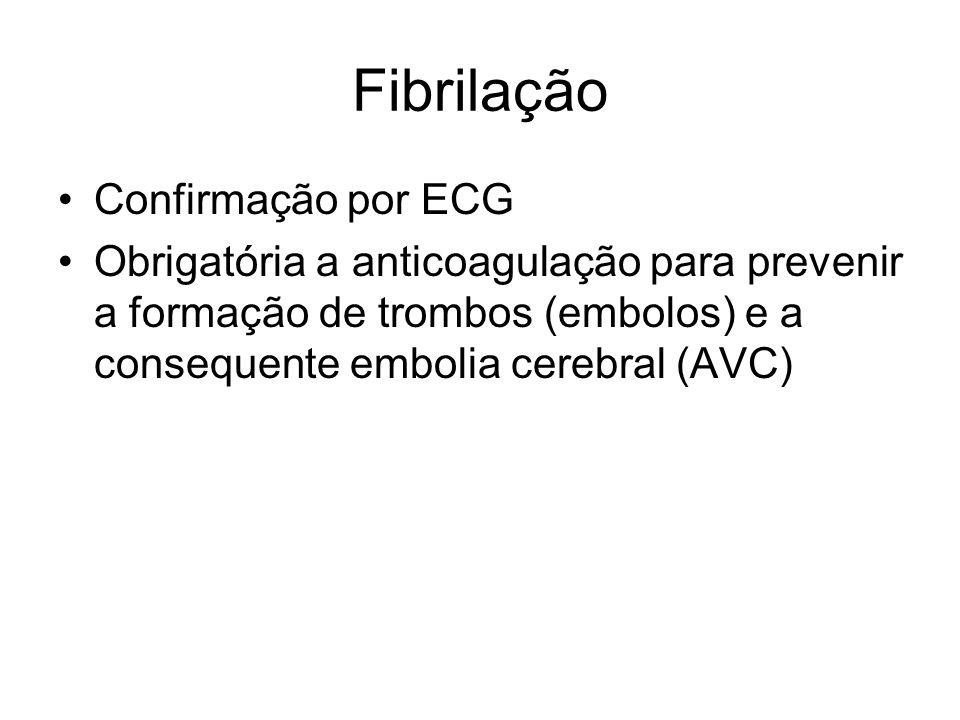 Fibrilação Confirmação por ECG Obrigatória a anticoagulação para prevenir a formação de trombos (embolos) e a consequente embolia cerebral (AVC)
