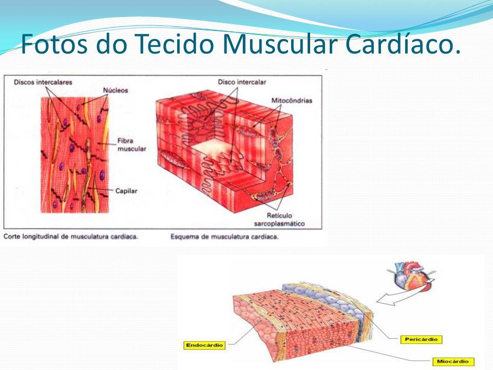 Fotos do Tecido Muscular Cardíaco.