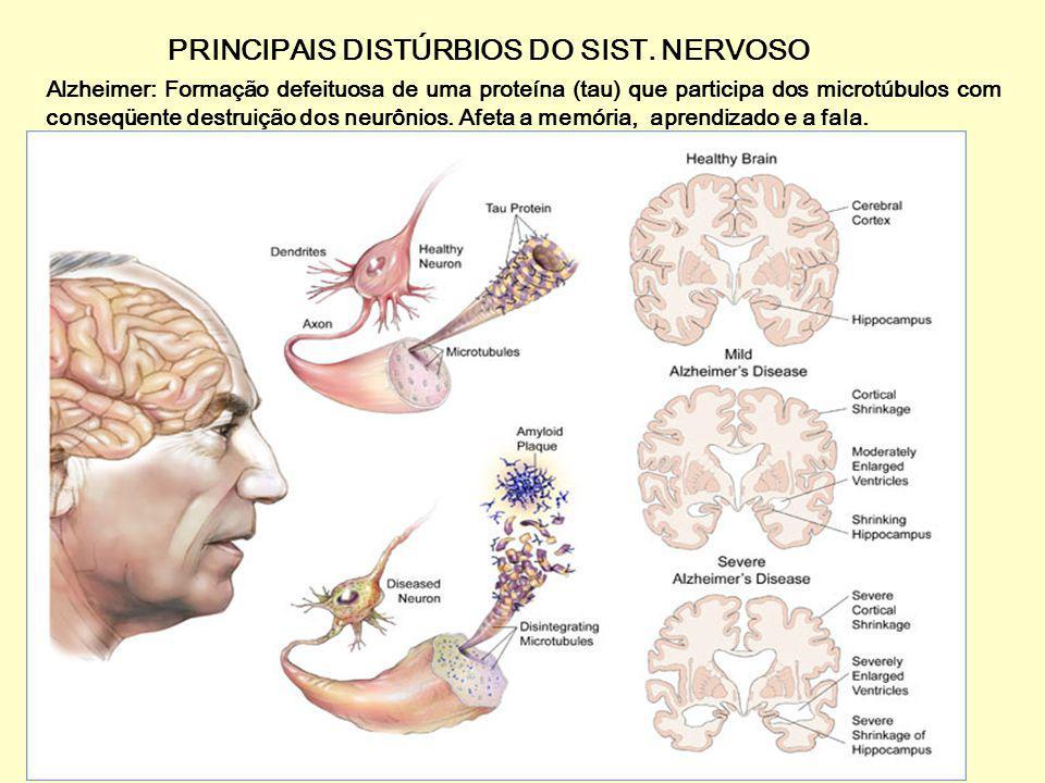PRINCIPAIS DISTÚRBIOS DO SIST. NERVOSO Esclerose múltipla: uma doença auto-imune. Destruição da bainha de mielina. problemas visuais, dist ú rbios da