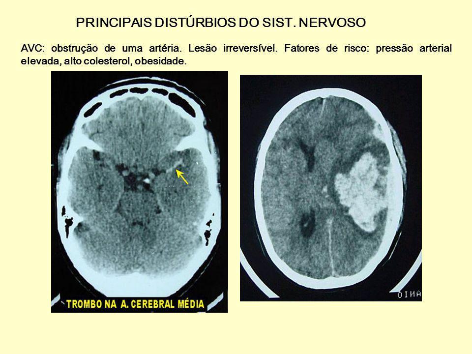 PRINCIPAIS DISTÚRBIOS DO SIST. NERVOSO Parkinson: acentuada redução de dopamina nos centros motores, causando tremores, lentidão e dificuldade de loco