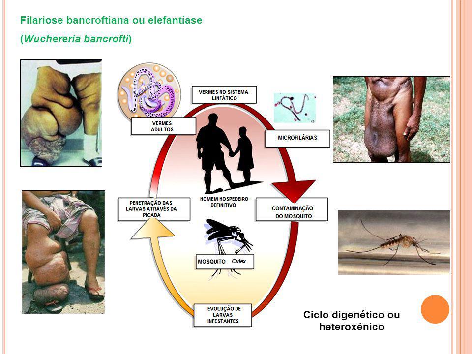 Filariose bancroftiana ou elefantíase (Wuchereria bancrofti) Ciclo digenético ou heteroxênico