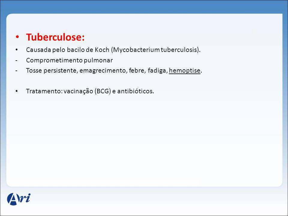 Tuberculose: Causada pelo bacilo de Koch (Mycobacterium tuberculosis). -Comprometimento pulmonar -Tosse persistente, emagrecimento, febre, fadiga, hem