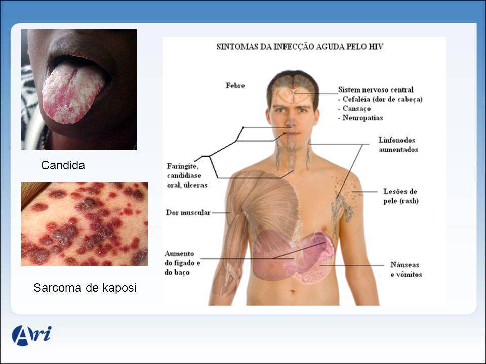 Sarcoma de kaposi Candida