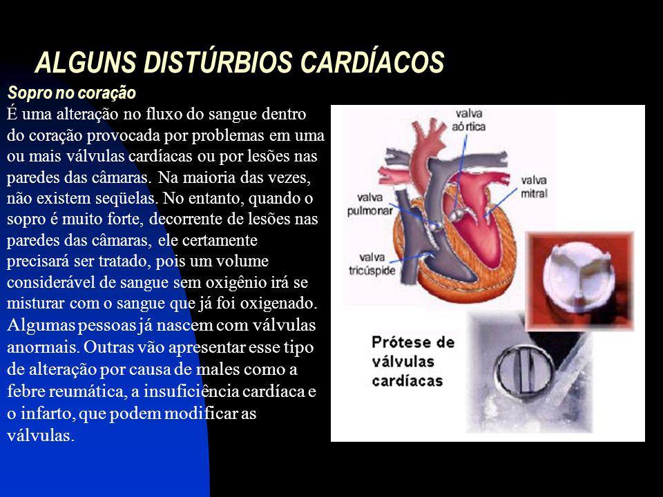 ALGUNS DISTÚRBIOS CARDÍACOS Sopro no coração É uma alteração no fluxo do sangue dentro do coração provocada por problemas em uma ou mais válvulas card