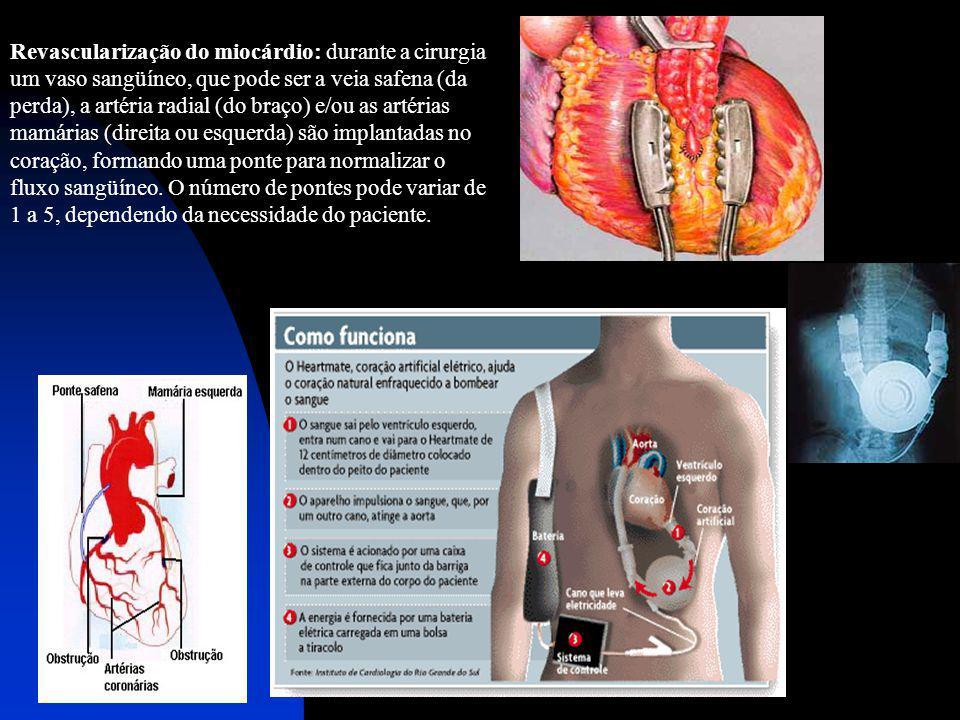 Revascularização do miocárdio: durante a cirurgia um vaso sangüíneo, que pode ser a veia safena (da perda), a artéria radial (do braço) e/ou as artéri