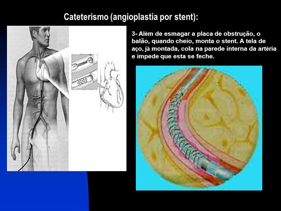 Cateterismo (angioplastia por stent): 3- Al é m de esmagar a placa de obstru ç ão, o balão, quando cheio, monta o stent. A tela de a ç o, j á montada,