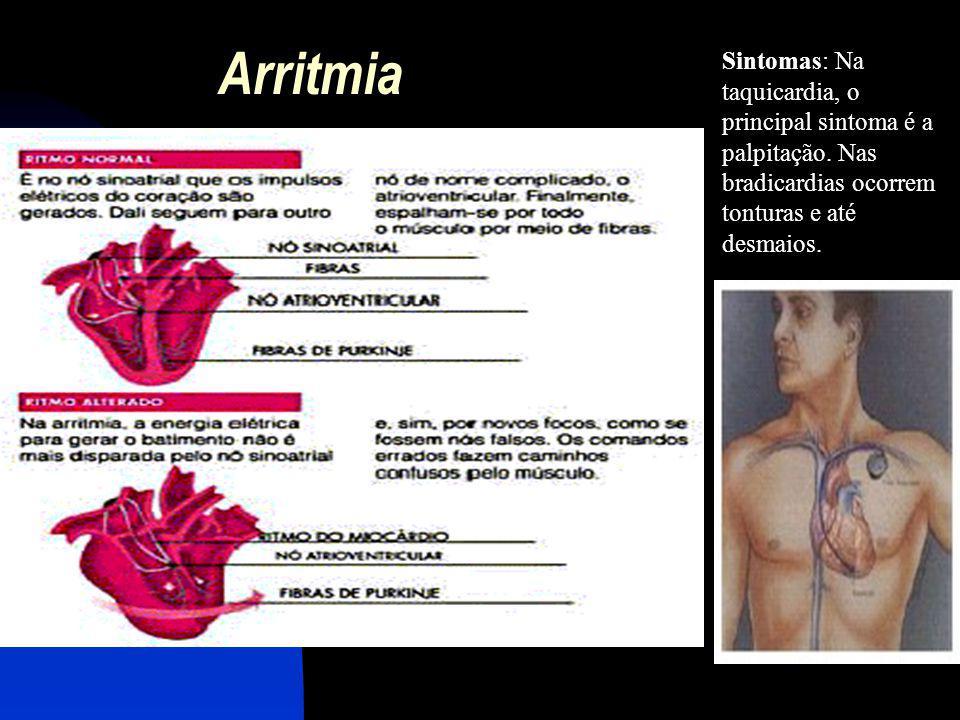 Arritmia Sintomas: Na taquicardia, o principal sintoma é a palpitação. Nas bradicardias ocorrem tonturas e até desmaios.