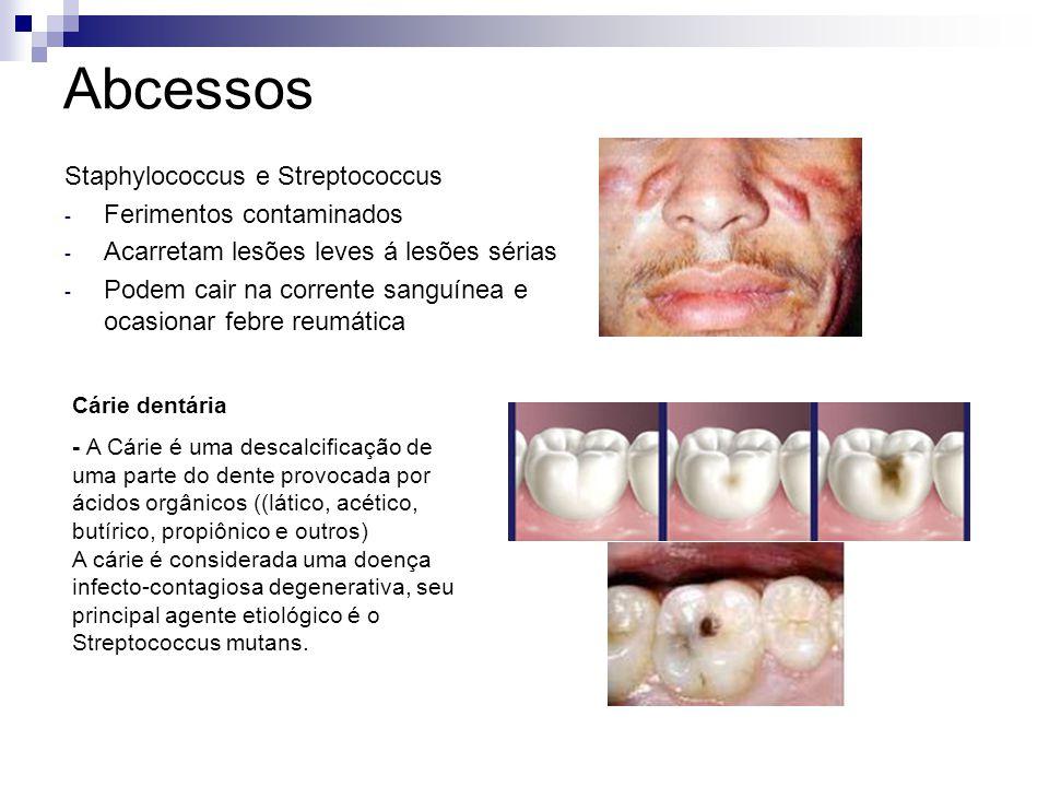 Abcessos Staphylococcus e Streptococcus - Ferimentos contaminados - Acarretam lesões leves á lesões sérias - Podem cair na corrente sanguínea e ocasio