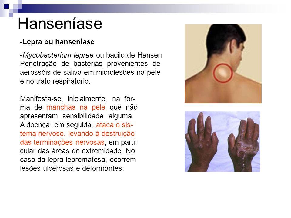 -Lepra ou hanseníase -Mycobacterium leprae ou bacilo de Hansen Penetração de bactérias provenientes de aerossóis de saliva em microlesões na pele e no