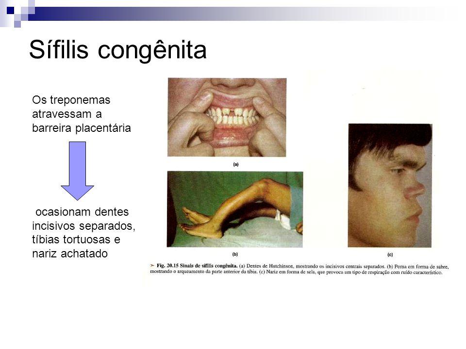 Sífilis congênita Os treponemas atravessam a barreira placentária ocasionam dentes incisivos separados, tíbias tortuosas e nariz achatado