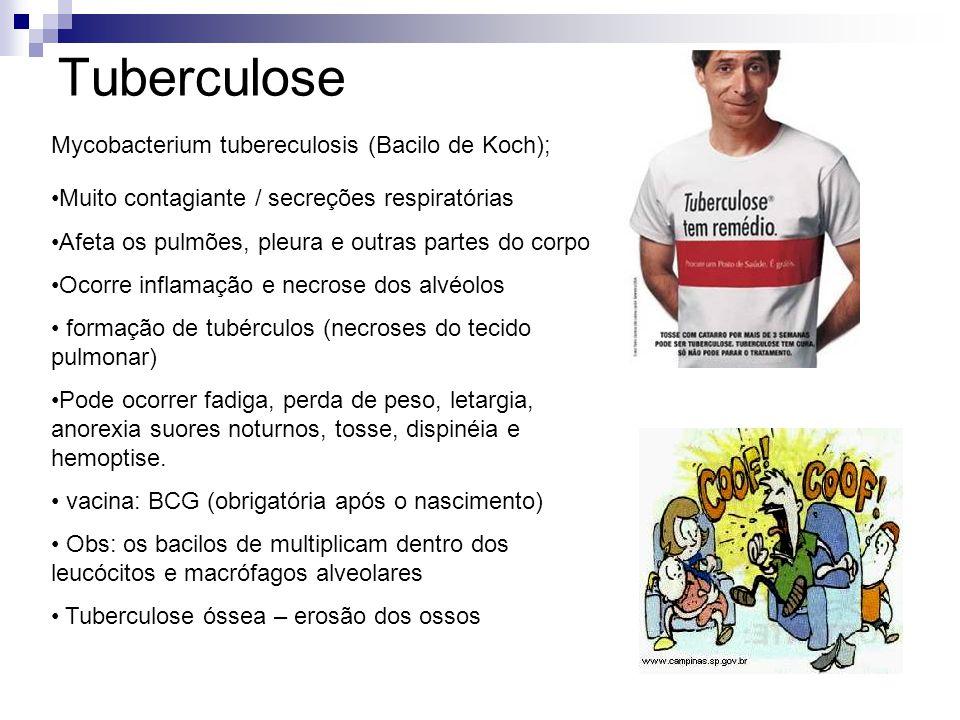 Tuberculose Mycobacterium tubereculosis (Bacilo de Koch); Muito contagiante / secreções respiratórias Afeta os pulmões, pleura e outras partes do corp