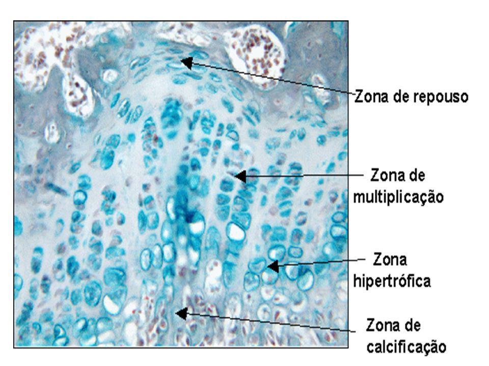 Disco epifisário Zona de repouso: cartilagem hialina sem alterações morfólogas Zona de cartilagem seriada (ou de multiplicação): formação de fileiras