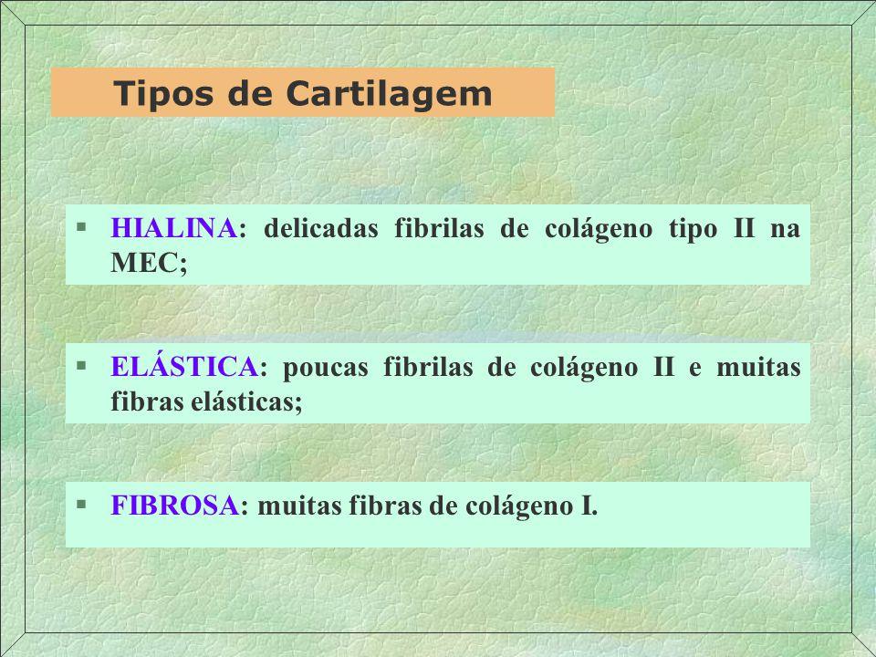 §HIALINA: delicadas fibrilas de colágeno tipo II na MEC; Tipos de Cartilagem §ELÁSTICA: poucas fibrilas de colágeno II e muitas fibras elásticas; §FIBROSA: muitas fibras de colágeno I.