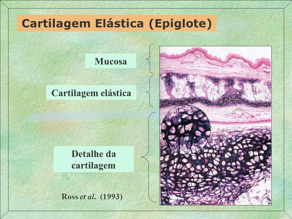 Cartilagem Elástica (Epiglote) Detalhe da cartilagem Cartilagem elástica Mucosa Ross et al. (1993)